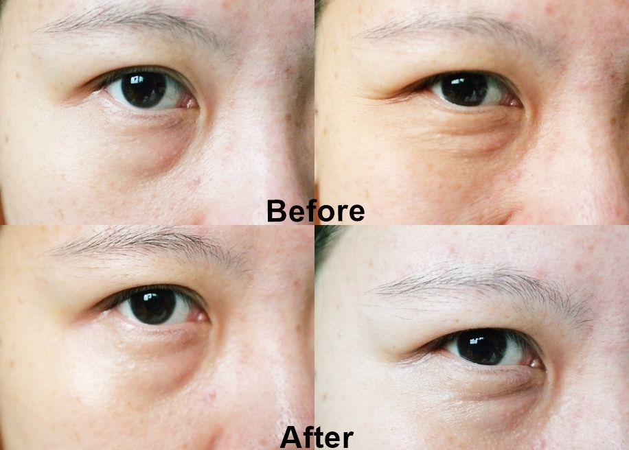 Body Shop Vitamin E Anti-fatgue Eye Stick Review_Before After