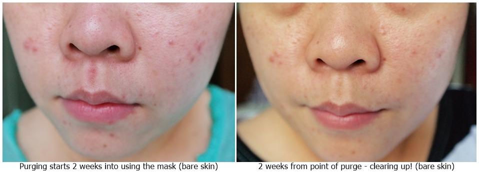Aesop Acne Treatment Skincare | Chamomile Concentrate Anti-Blemish