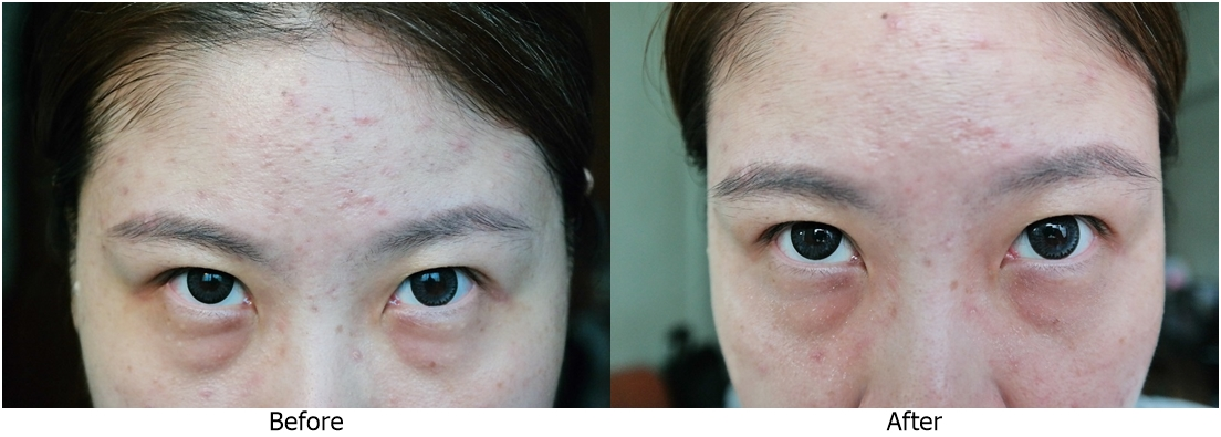 Instant Eye Bag Removal Singapore Best 2017