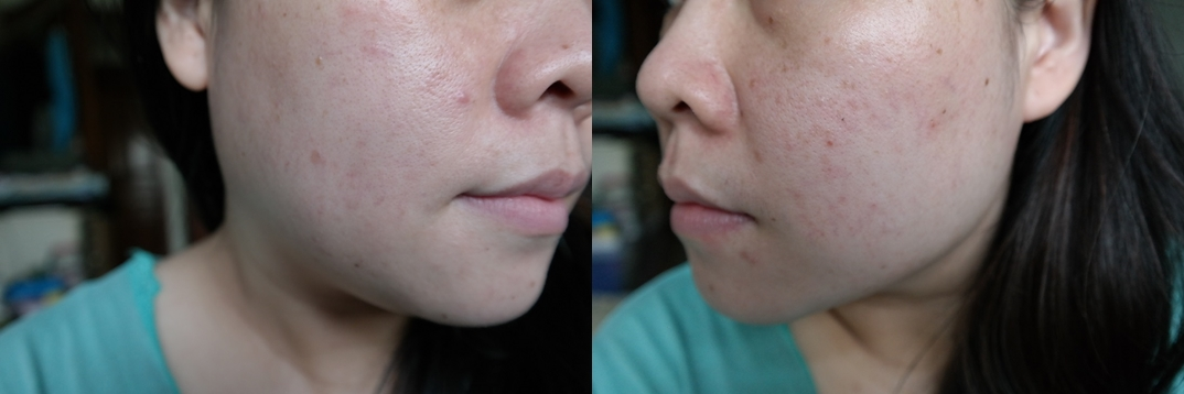 Age Spots On Face Natural Cure