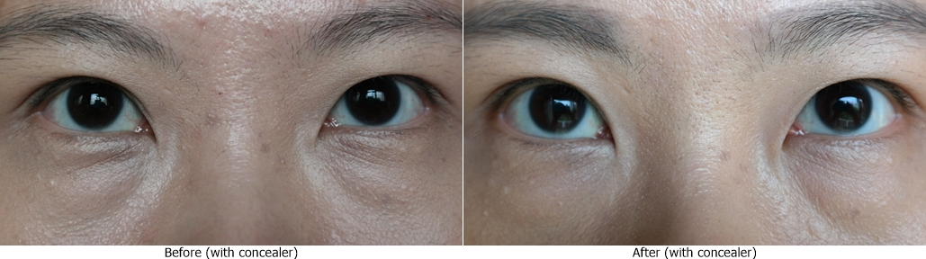 How-To-Remove-Under-Eye-Bags-Wrinkles-Fine-Lines-Crows-Feet-Singapore